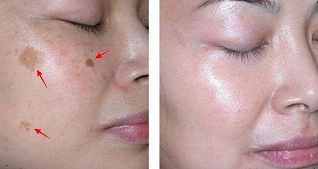 skin whitening bleaching